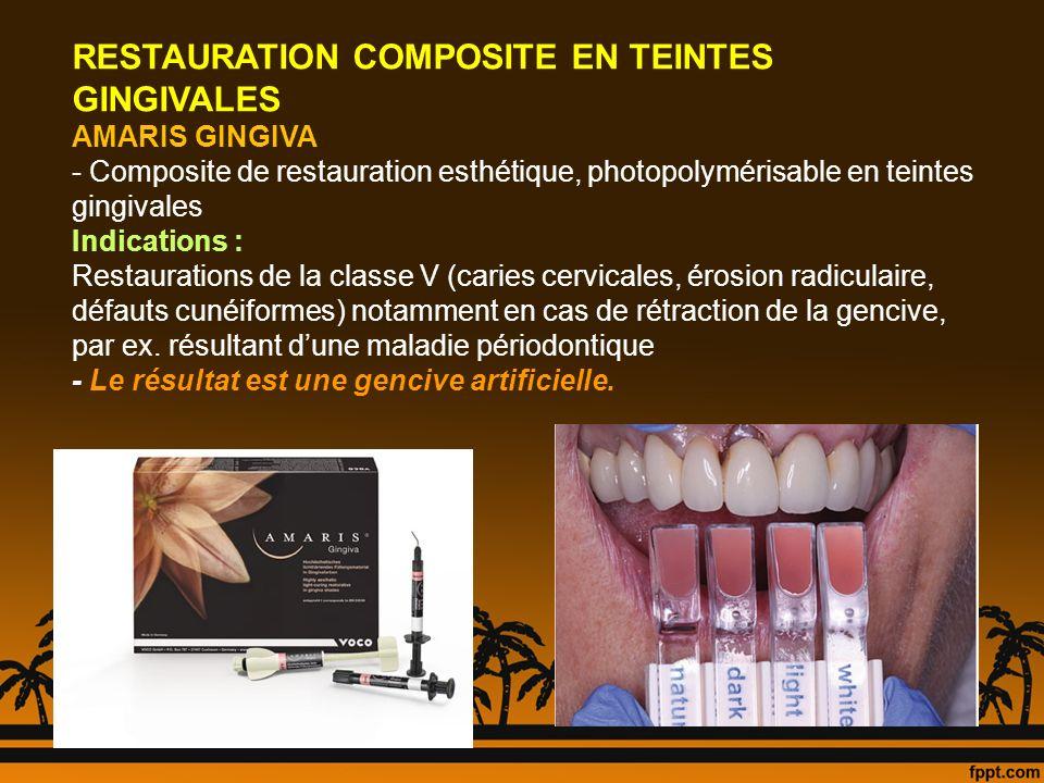 RESTAURATION COMPOSITE EN TEINTES GINGIVALES