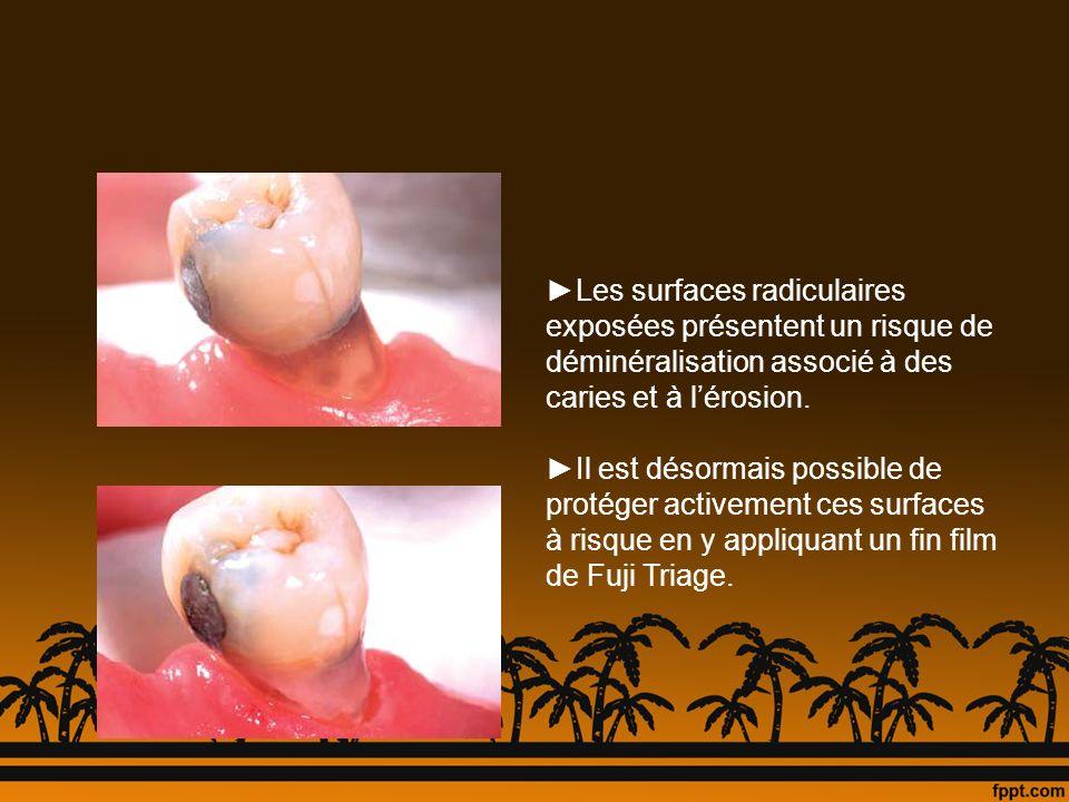 ►Les surfaces radiculaires exposées présentent un risque de déminéralisation associé à des