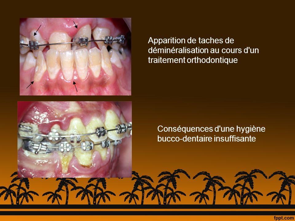 Apparition de taches de déminéralisation au cours d un traitement orthodontique