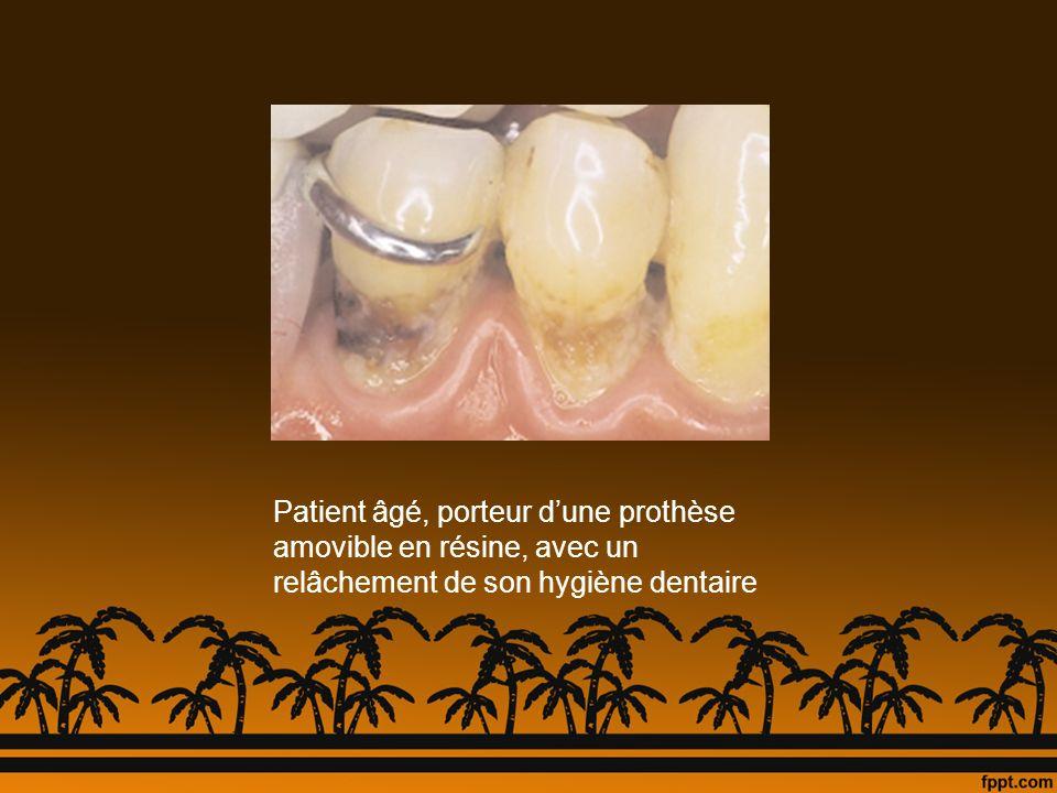 Patient âgé, porteur d'une prothèse amovible en résine, avec un relâchement de son hygiène dentaire