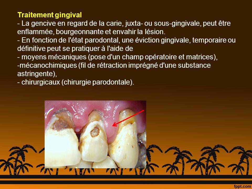 Traitement gingival La gencive en regard de la carie, juxta- ou sous-gingivale, peut être enflammée, bourgeonnante et envahir la lésion.
