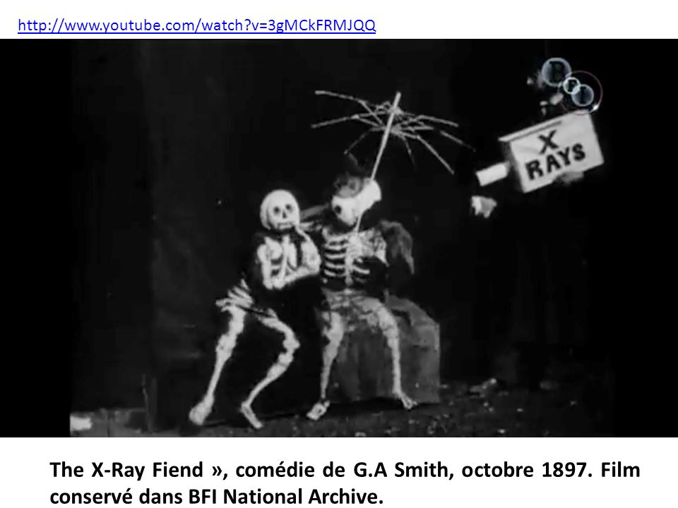 v=3gMCkFRMJQQ The X-Ray Fiend », comédie de G.A Smith, octobre 1897.
