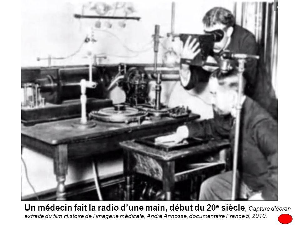 Un médecin fait la radio d'une main, début du 20e siècle, Capture d'écran extraite du film Histoire de l'imagerie médicale, André Annosse, documentaire France 5, 2010.