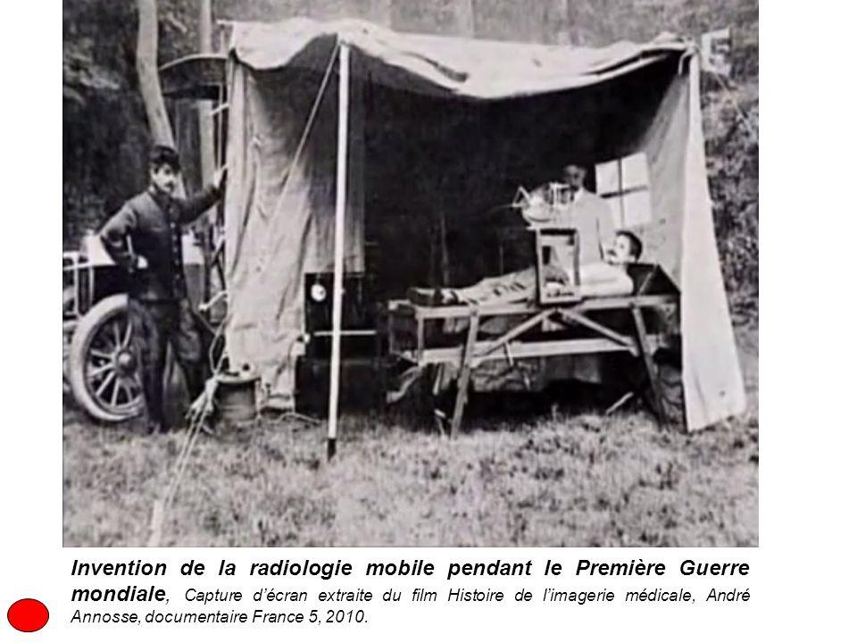 Invention de la radiologie mobile pendant le Première Guerre mondiale, Capture d'écran extraite du film Histoire de l'imagerie médicale, André Annosse, documentaire France 5, 2010.
