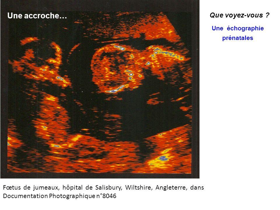 Une échographie prénatales