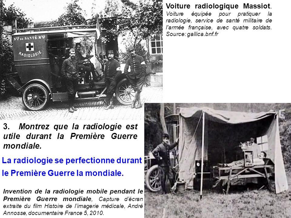 La radiologie se perfectionne durant le Première Guerre la mondiale.