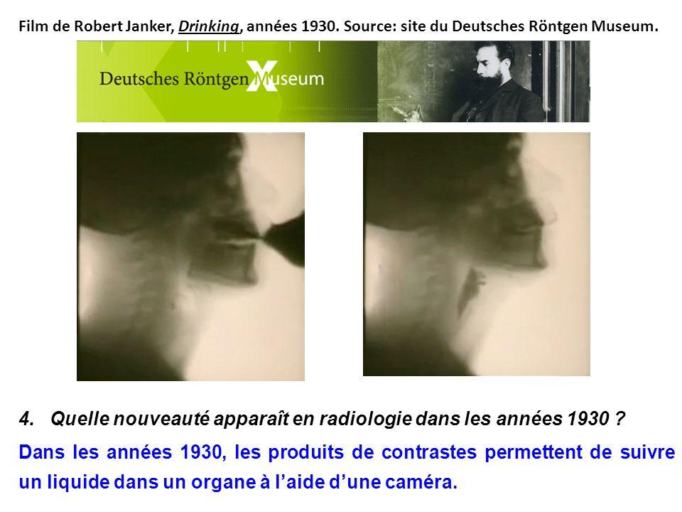 4. Quelle nouveauté apparaît en radiologie dans les années 1930