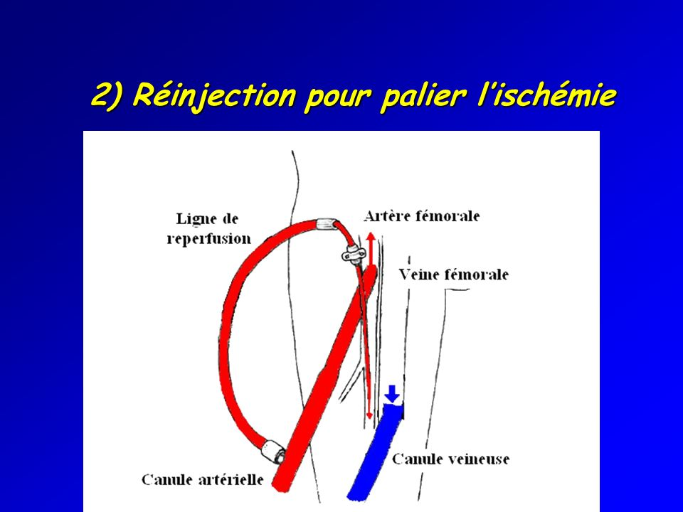2) Réinjection pour palier l'ischémie