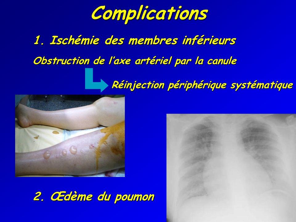 Complications 1. Ischémie des membres inférieurs 2. Œdème du poumon