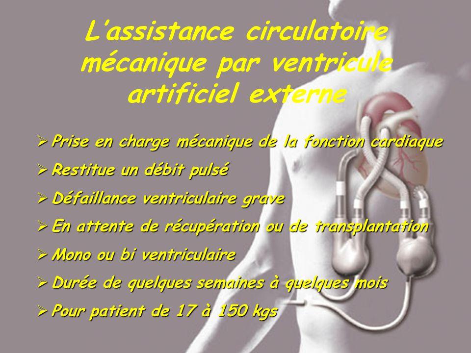 L'assistance circulatoire mécanique par ventricule artificiel externe