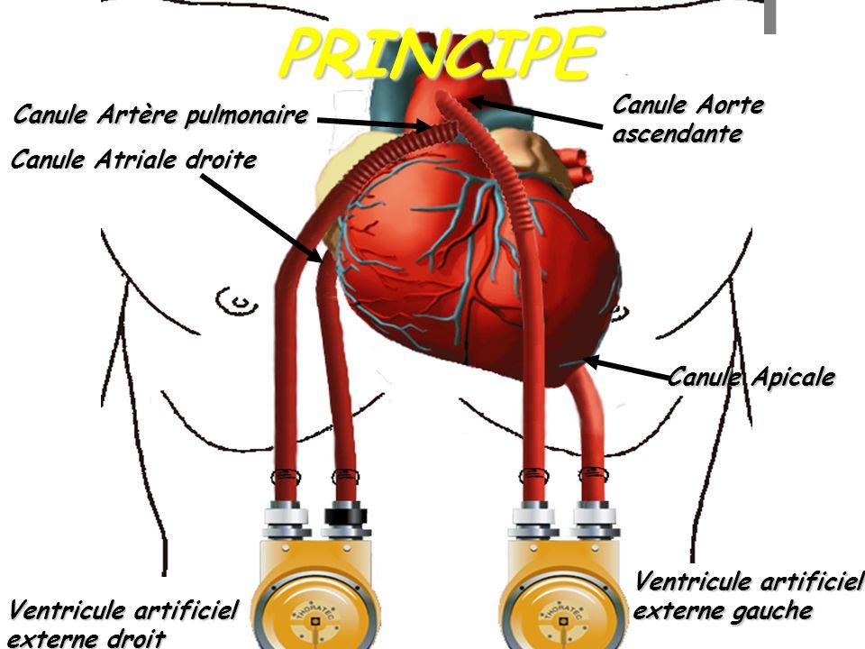 PRINCIPE Canule Aorte ascendante Canule Artère pulmonaire