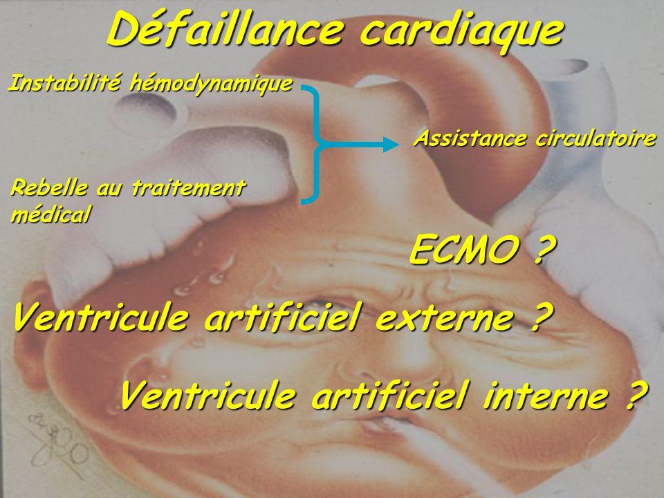 Défaillance cardiaque