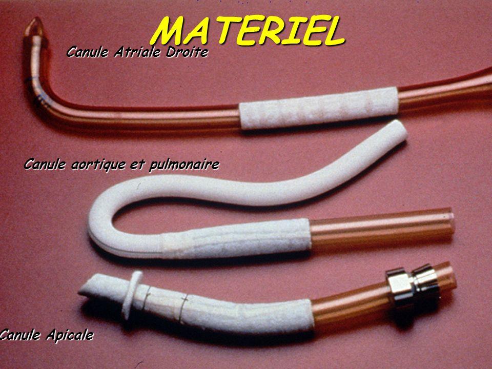 MATERIEL Canule Atriale Droite Canule aortique et pulmonaire