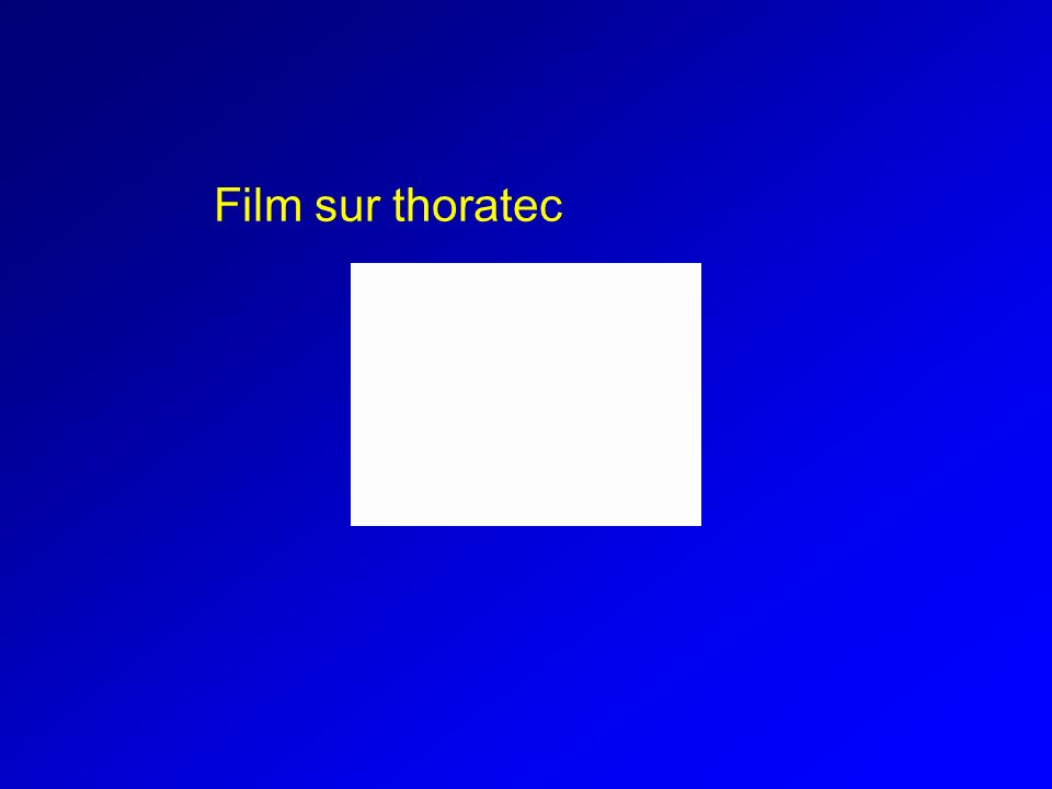 Film sur thoratec