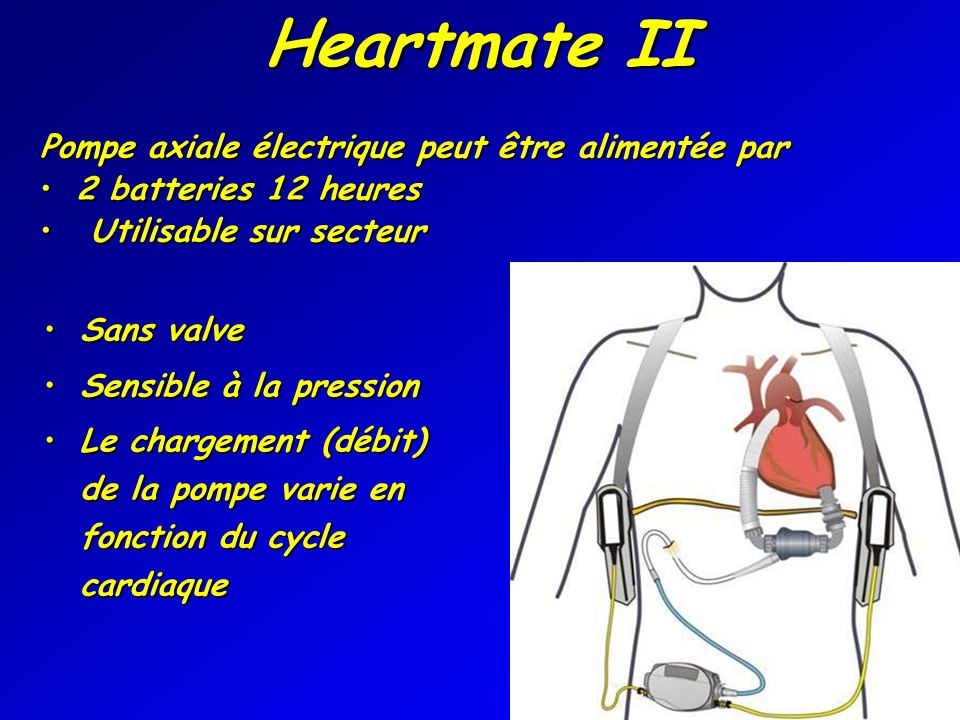 Heartmate II Pompe axiale électrique peut être alimentée par
