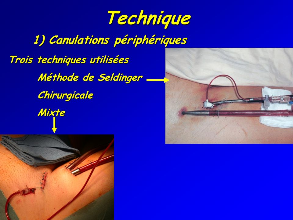 Technique 1) Canulations périphériques Trois techniques utilisées