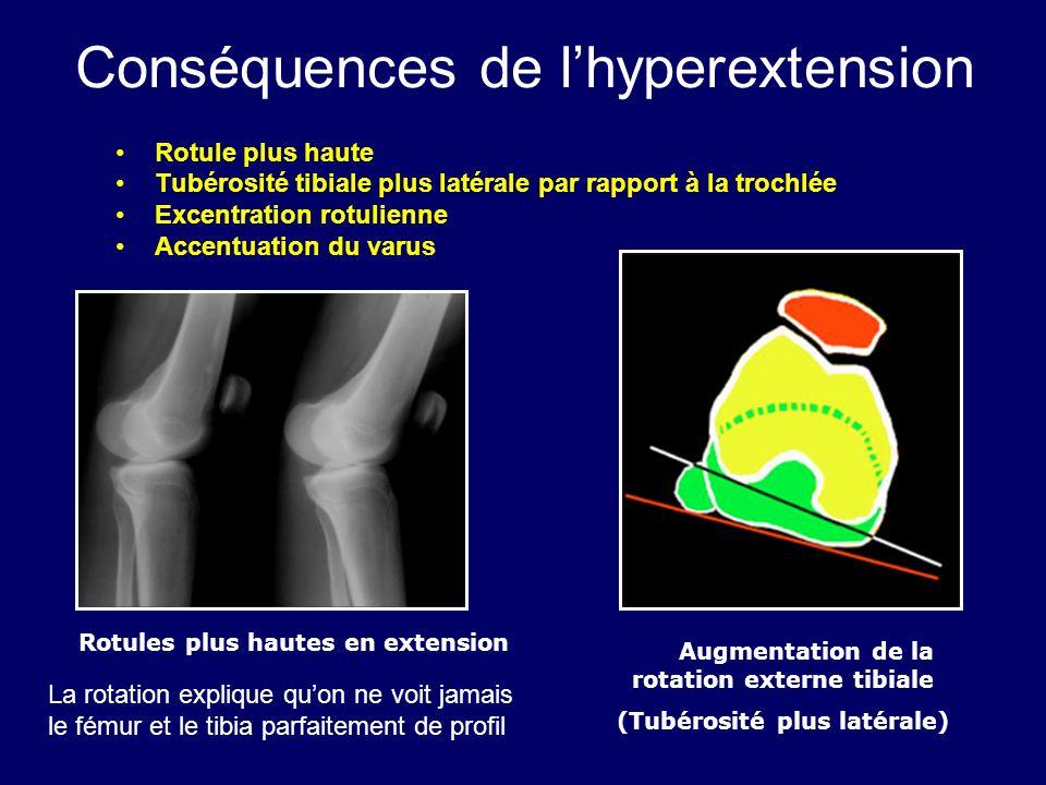 Conséquences de l'hyperextension