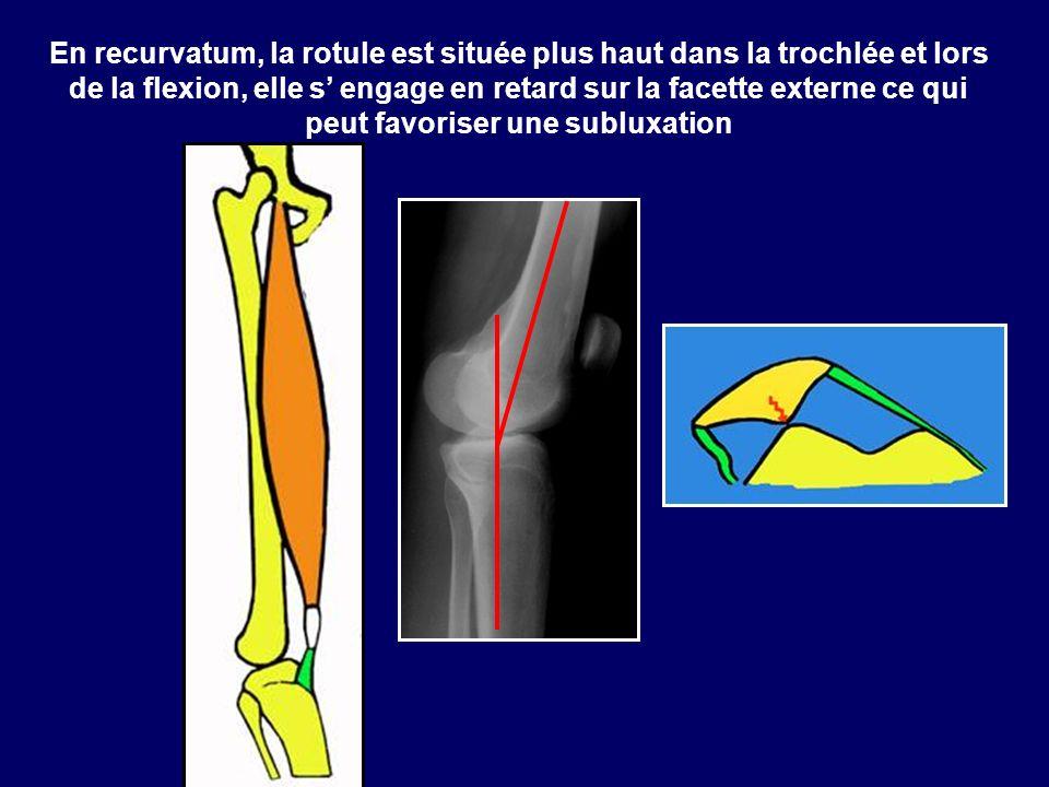 En recurvatum, la rotule est située plus haut dans la trochlée et lors de la flexion, elle s' engage en retard sur la facette externe ce qui peut favoriser une subluxation