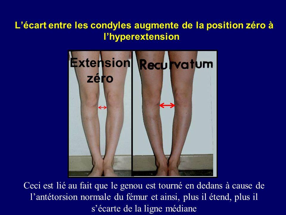 L'écart entre les condyles augmente de la position zéro à l'hyperextension