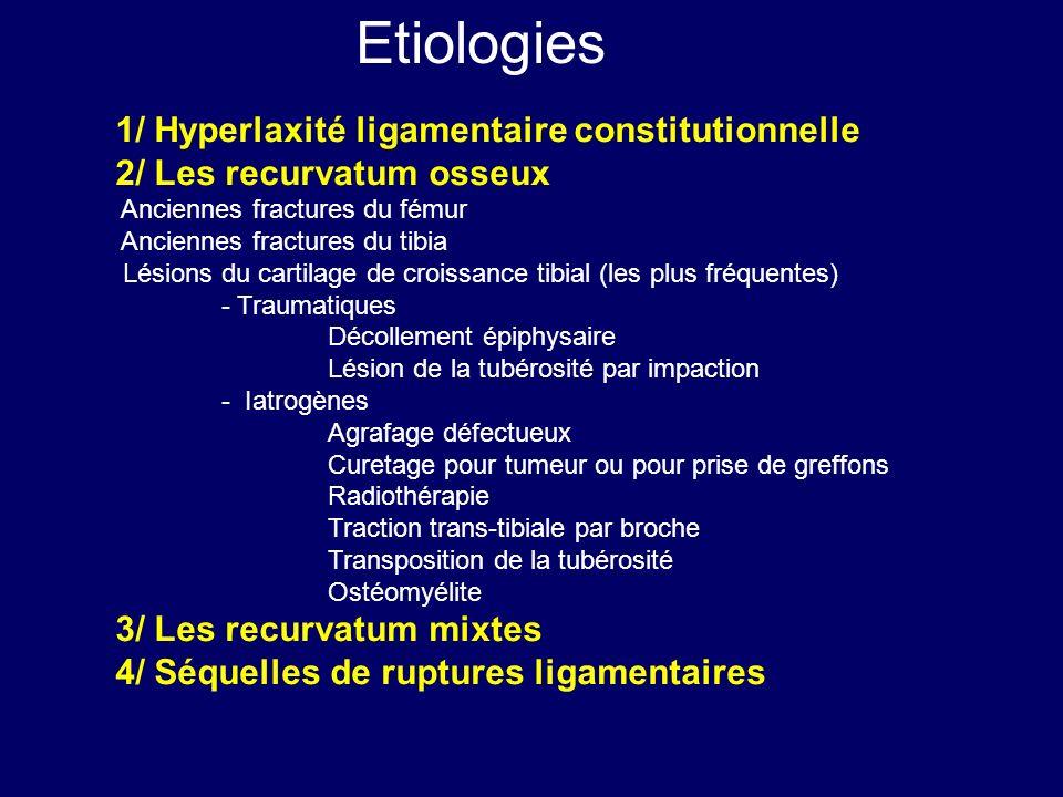 Etiologies 1/ Hyperlaxité ligamentaire constitutionnelle