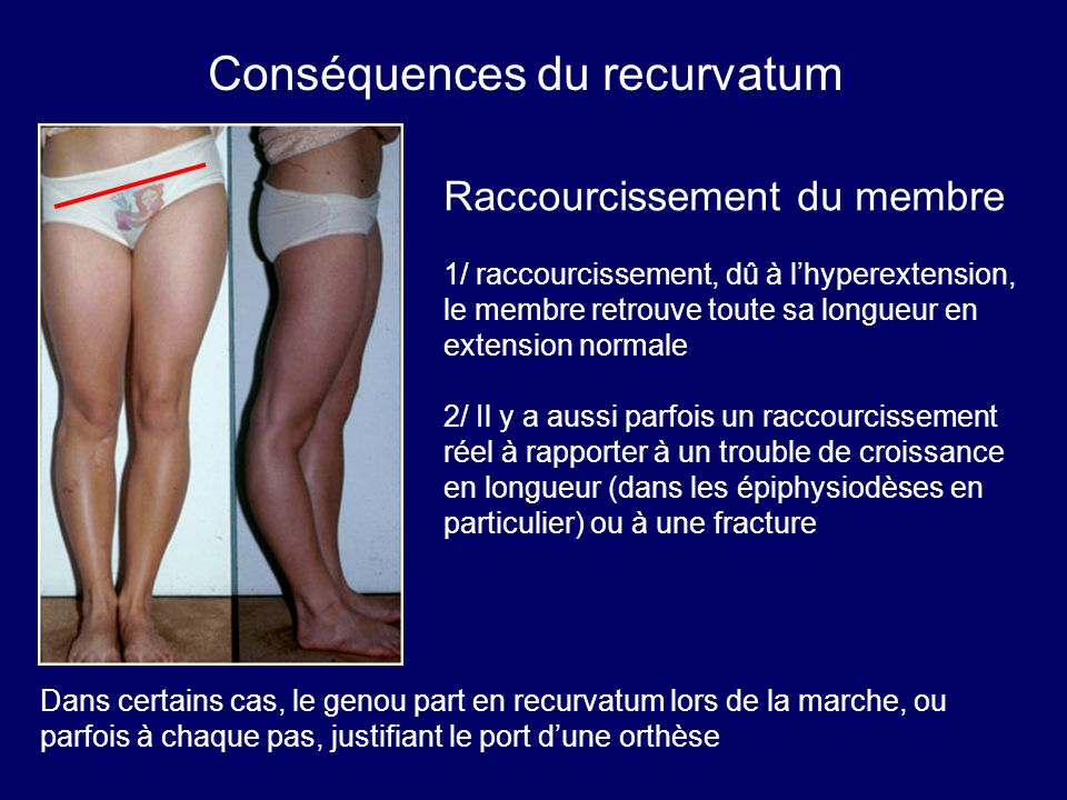 Conséquences du recurvatum