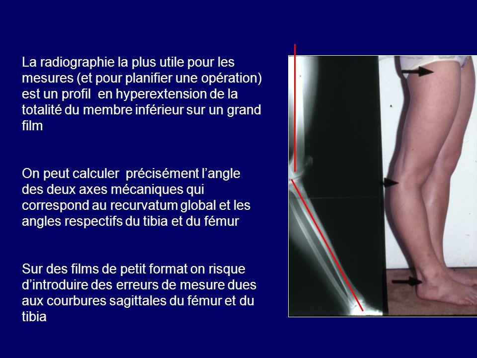 La radiographie la plus utile pour les mesures (et pour planifier une opération) est un profil en hyperextension de la totalité du membre inférieur sur un grand film