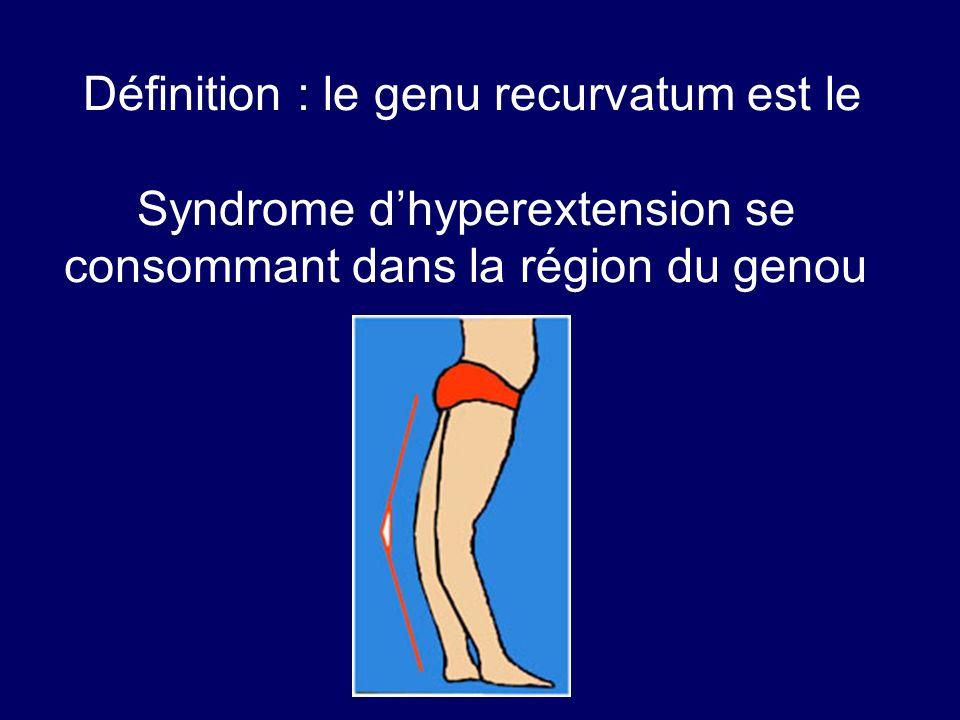 Définition : le genu recurvatum est le Syndrome d'hyperextension se consommant dans la région du genou