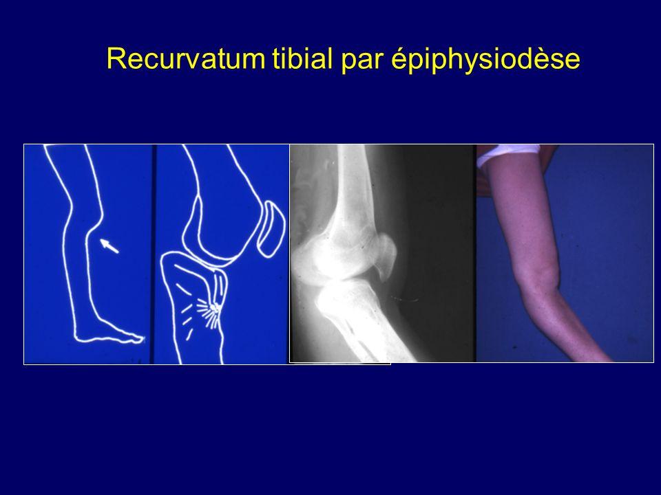 Recurvatum tibial par épiphysiodèse