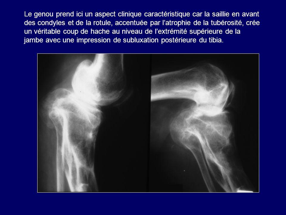 Le genou prend ici un aspect clinique caractéristique car la saillie en avant des condyles et de la rotule, accentuée par l'atrophie de la tubérosité, crée un véritable coup de hache au niveau de l'extrémité supérieure de la jambe avec une impression de subluxation postérieure du tibia.