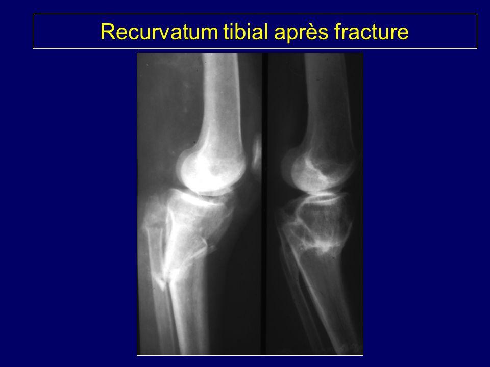 Recurvatum tibial après fracture
