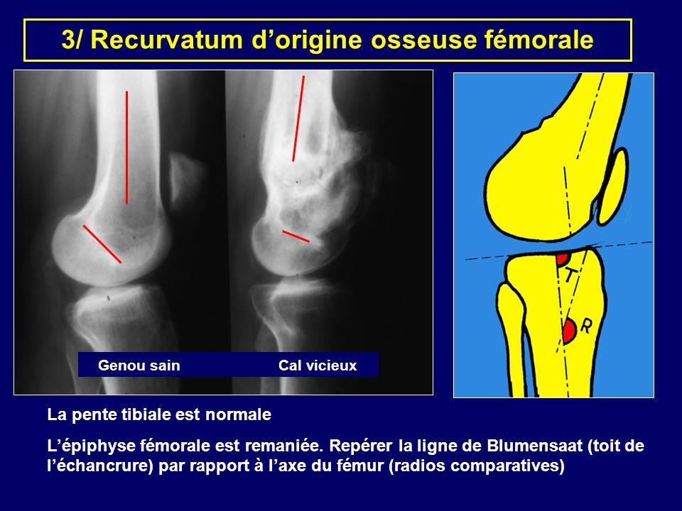 3/ Recurvatum d'origine osseuse fémorale