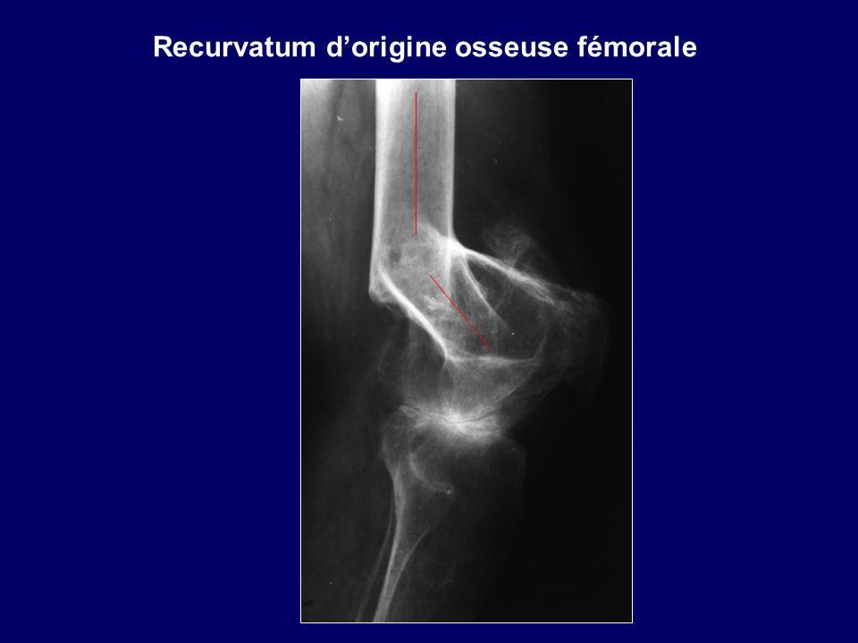 Recurvatum d'origine osseuse fémorale