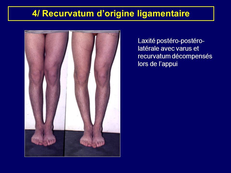 4/ Recurvatum d'origine ligamentaire