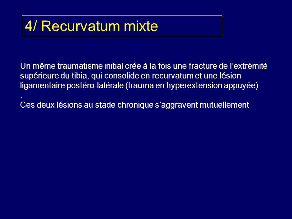 4/ Recurvatum mixte