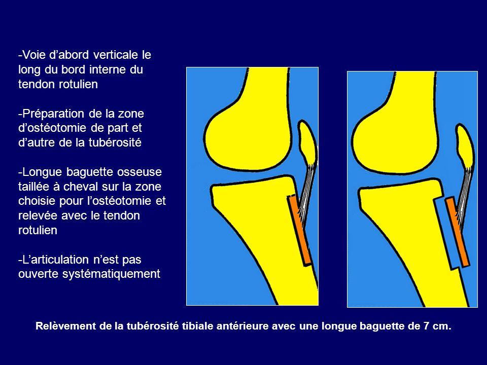 Voie d'abord verticale le long du bord interne du tendon rotulien