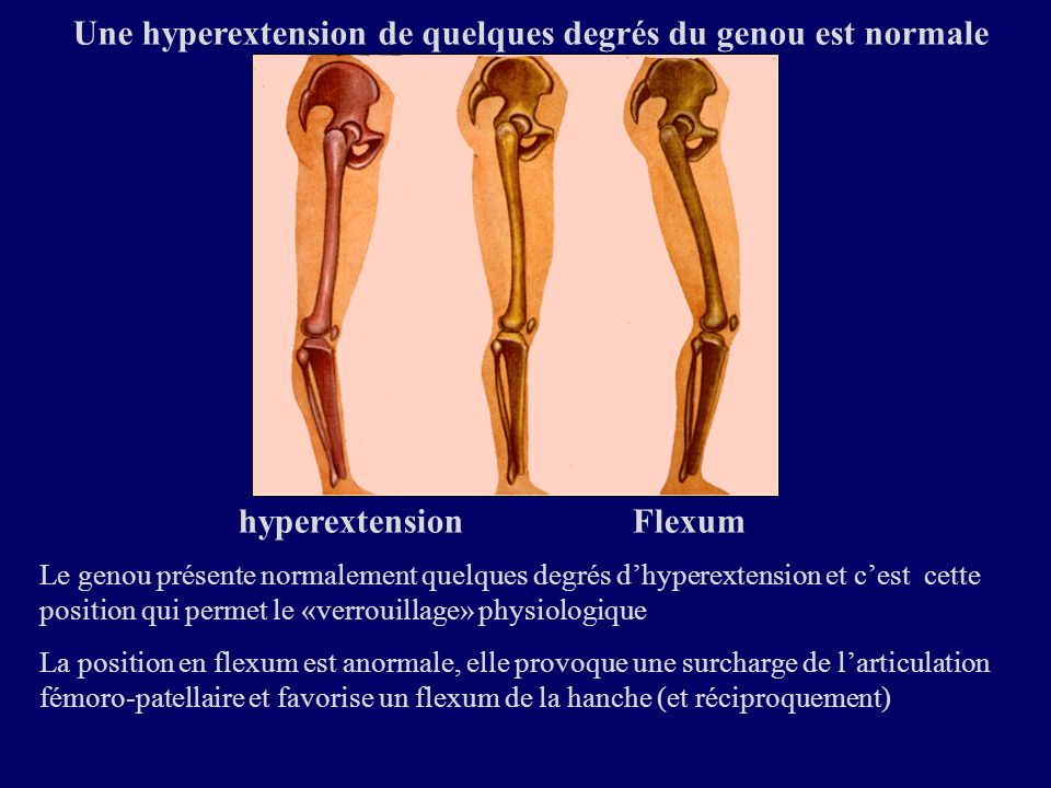 Une hyperextension de quelques degrés du genou est normale