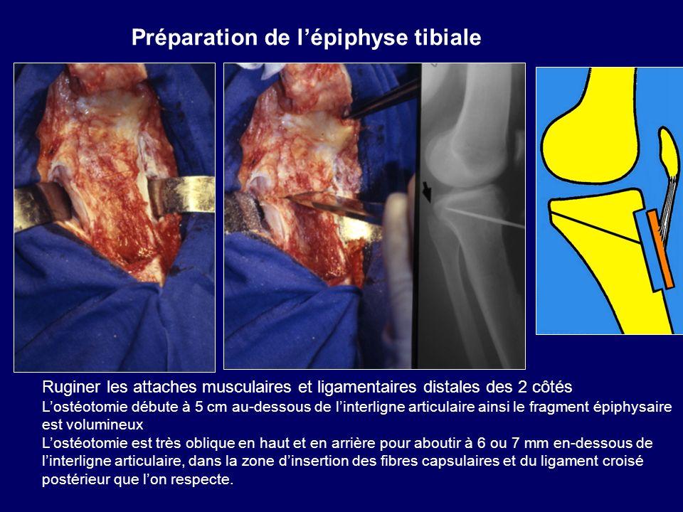 Préparation de l'épiphyse tibiale