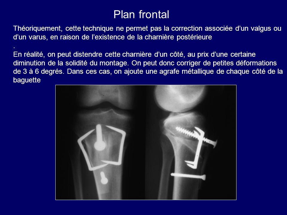 Plan frontal