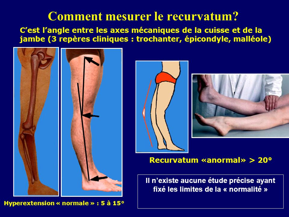 Comment mesurer le recurvatum