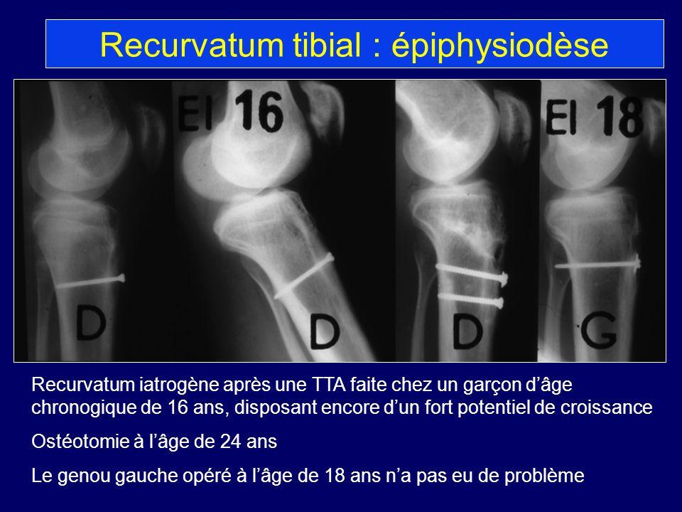 Recurvatum tibial : épiphysiodèse
