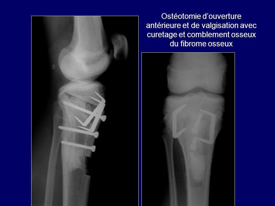 Ostéotomie d'ouverture antérieure et de valgisation avec curetage et comblement osseux du fibrome osseux