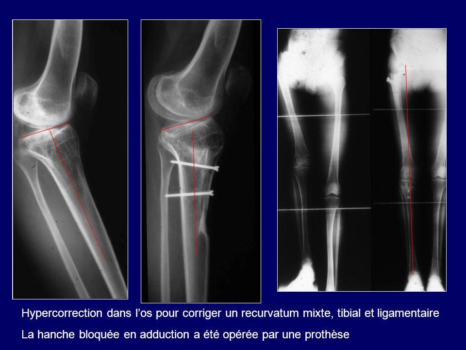 Hypercorrection dans l'os pour corriger un recurvatum mixte, tibial et ligamentaire