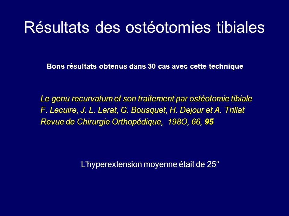 Résultats des ostéotomies tibiales