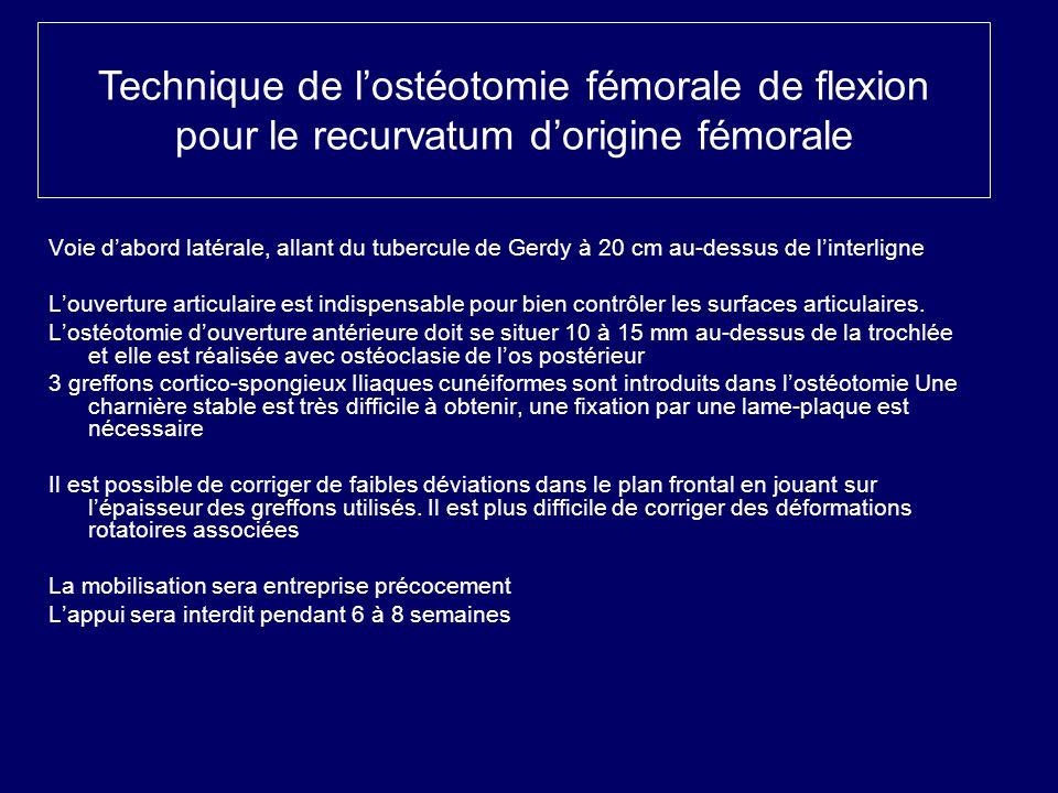 Technique de l'ostéotomie fémorale de flexion pour le recurvatum d'origine fémorale