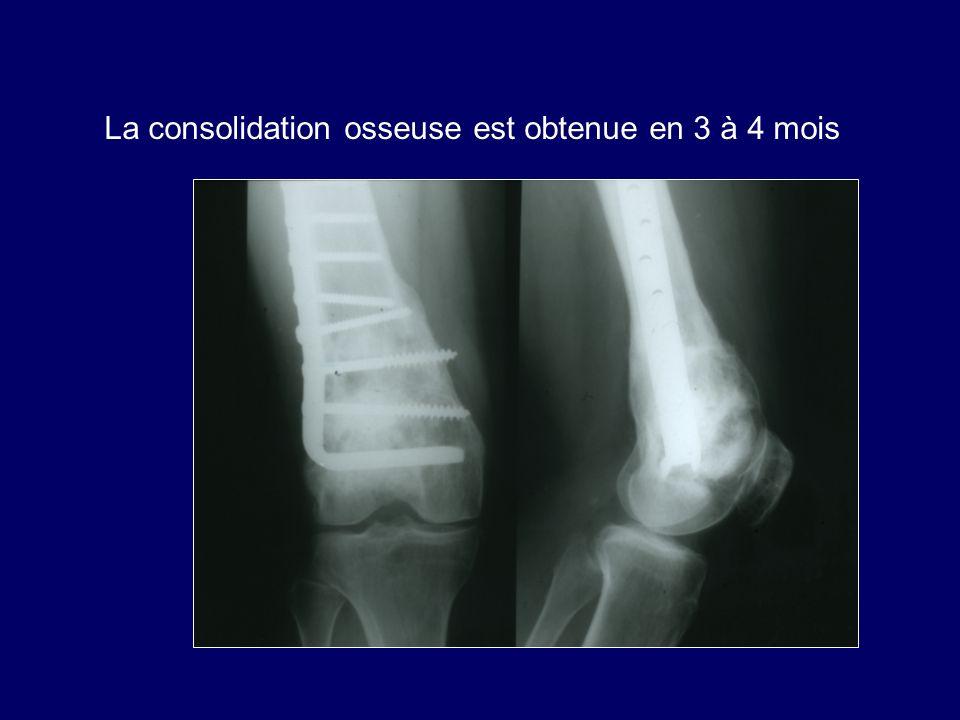 La consolidation osseuse est obtenue en 3 à 4 mois