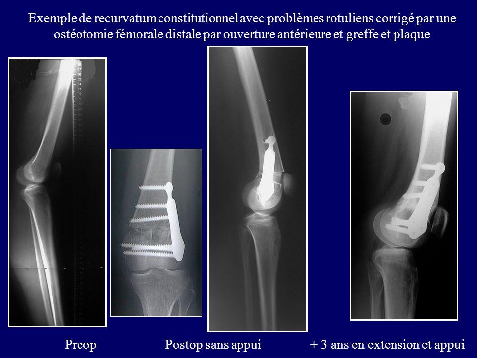 Exemple de recurvatum constitutionnel avec problèmes rotuliens corrigé par une ostéotomie fémorale distale par ouverture antérieure et greffe et plaque