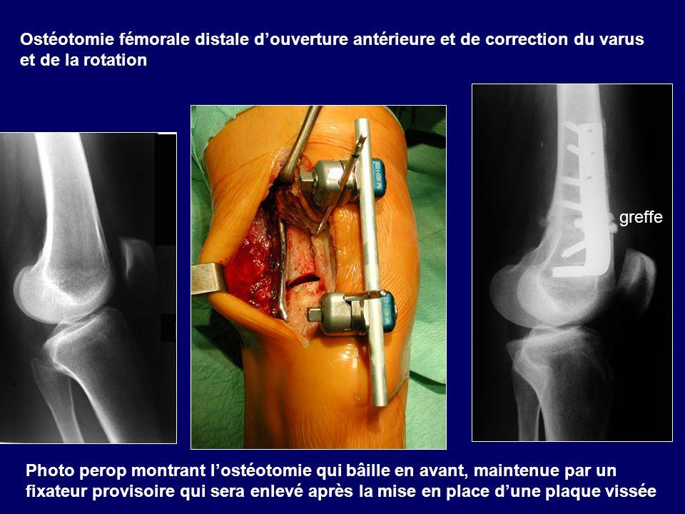 Ostéotomie fémorale distale d'ouverture antérieure et de correction du varus et de la rotation