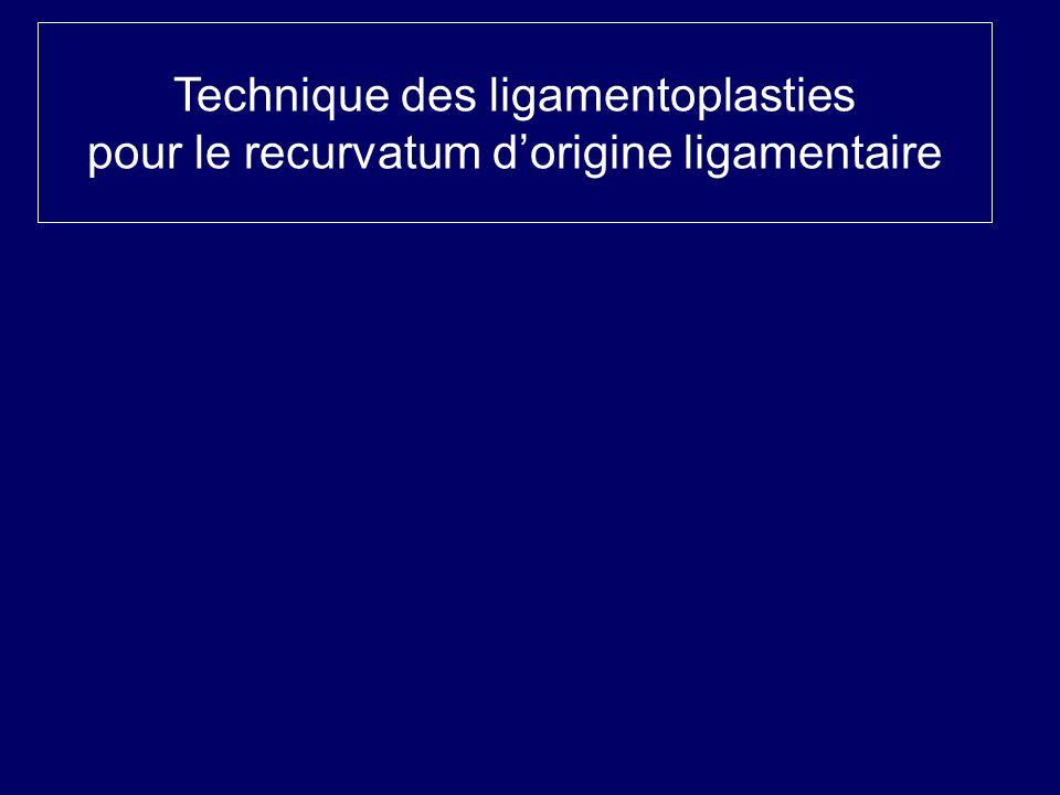 Technique des ligamentoplasties pour le recurvatum d'origine ligamentaire
