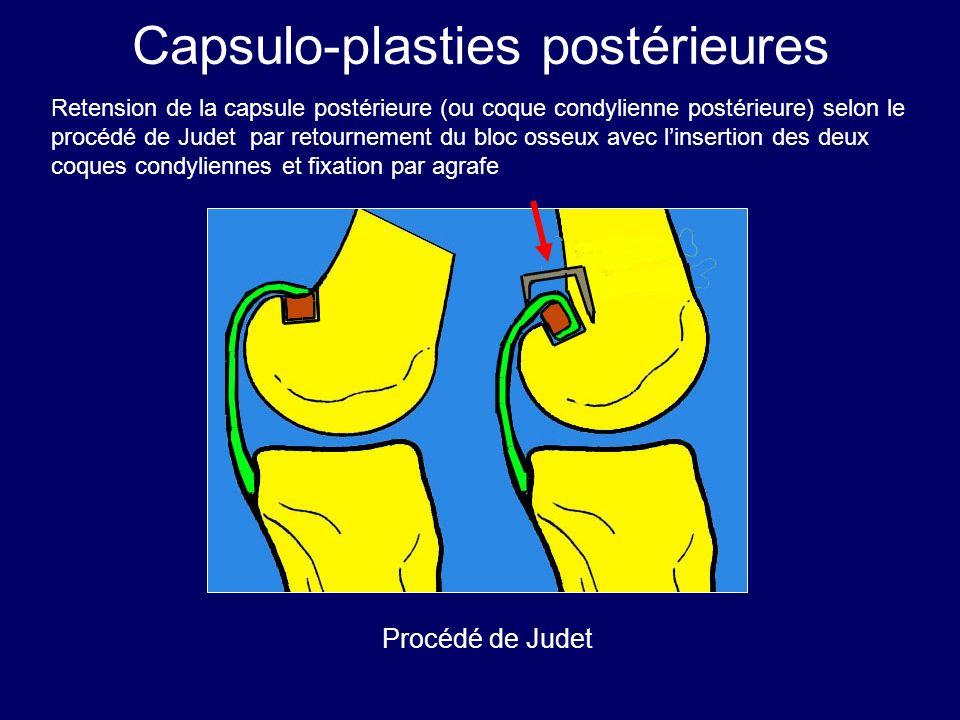Capsulo-plasties postérieures