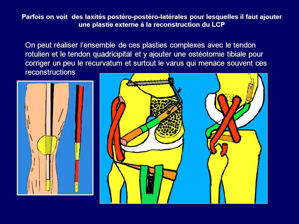 Parfois on voit des laxités postéro-postéro-latérales pour lesquelles il faut ajouter une plastie externe à la reconstruction du LCP